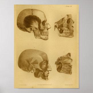 1854 Vintage Human Skull Jaw Anatomy Print
