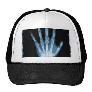 Blue X-ray Skeleton Hand Cap