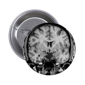 Brain MRI, coronal slice Pinback Button
