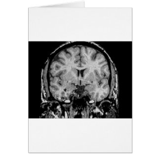 Brain MRI, coronal slice Greeting Card