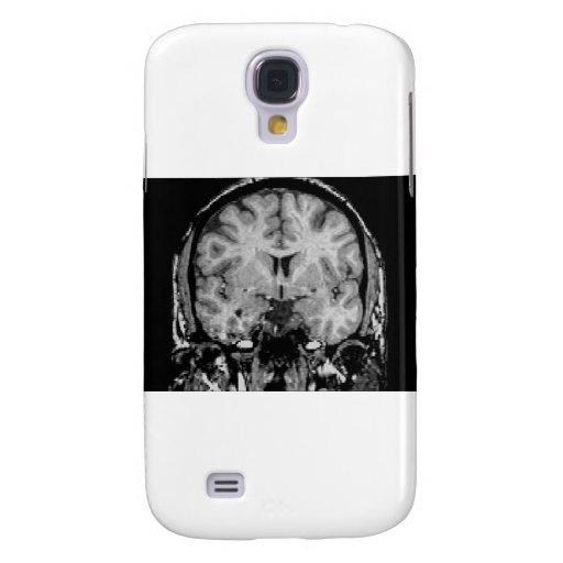 Brain MRI, coronal slice Samsung Galaxy S4 Covers