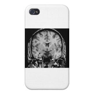 Brain MRI coronal slice Cover For iPhone 4