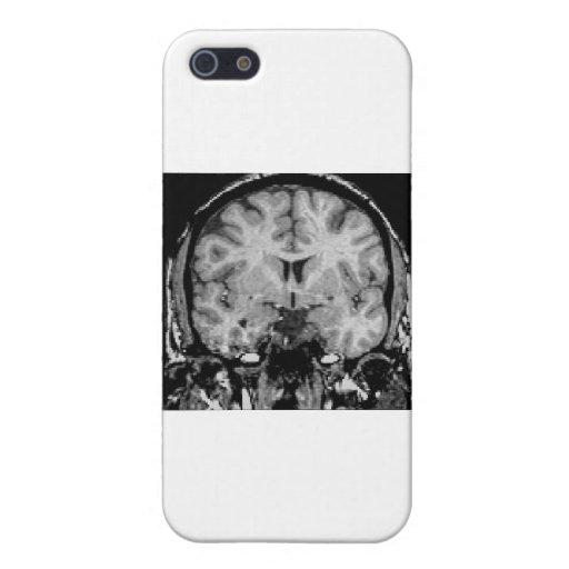 Brain MRI, coronal slice iPhone 5 Case