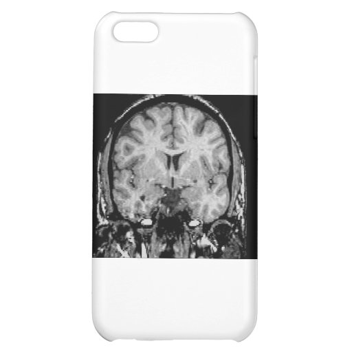 Brain MRI, coronal slice iPhone 5C Case