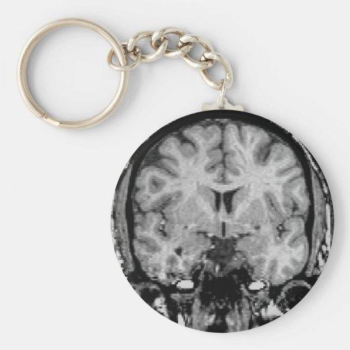 Brain MRI, coronal slice Key Chain