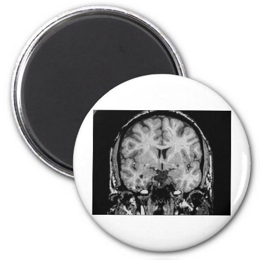 Brain MRI, coronal slice Fridge Magnet
