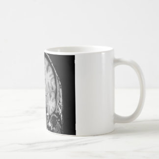 Brain MRI coronal slice Mug