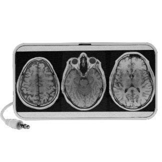 Brainophonic PC Speakers