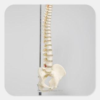 Chiropractic skeleton square sticker