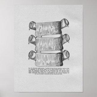 Chiropractic Vertebral Subluxation Vintage Print