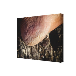 Cracked heel gallery wrapped canvas