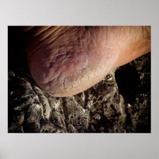 Cracked heel print