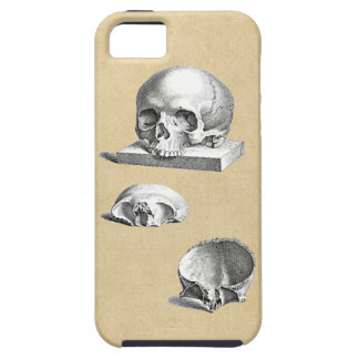 Cross Section of the Human Skull iPhone 5 Cover