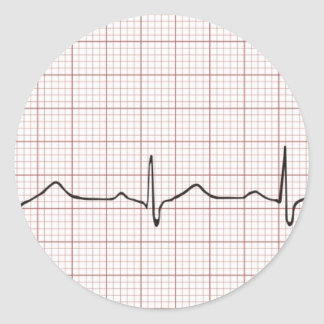 EKG heartbeat on graph paper pulse beating Round Stickers