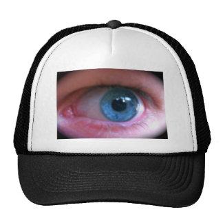 Eye hat