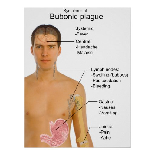a comparison of aids virus and the bubonic plague Pneumonic, septicemic, and bubonic plague are transmitted to humans from fleas that have fed on infected rodents plague symptoms include swollen lymph nodes, fever.