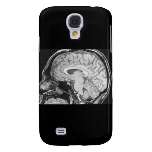 Mid-sagittal MRI Galaxy S4 Cases