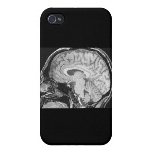 Mid-sagittal MRI Case For iPhone 4