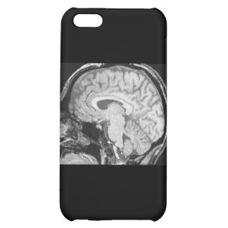 Mid-sagittal MRI iPhone 5C Case