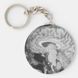 Mid-sagittal MRI Keychain