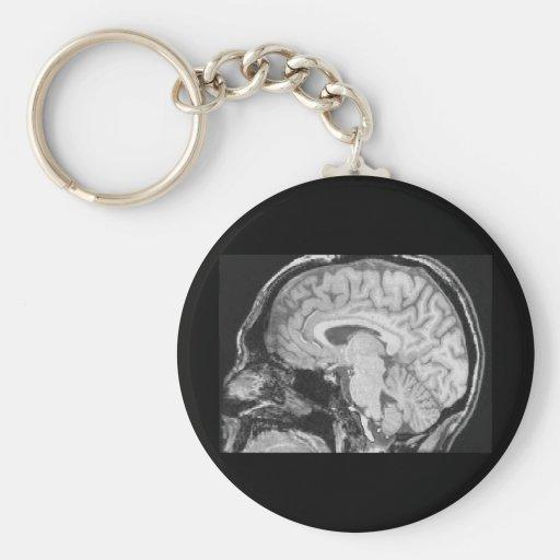 Mid-sagittal MRI Key Chains
