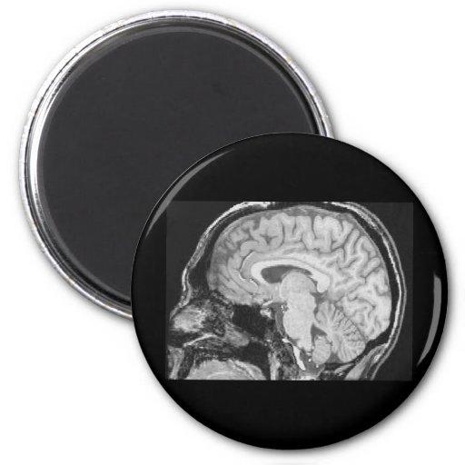 Mid-sagittal MRI Fridge Magnet