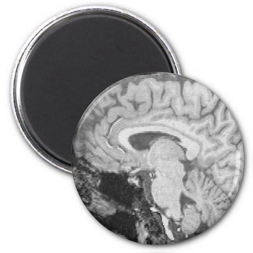 Mid-sagittal MRI Fridge Magnets