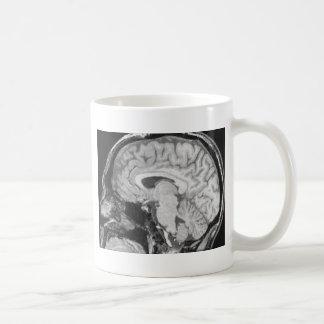 Mid-sagittal MRI Mug