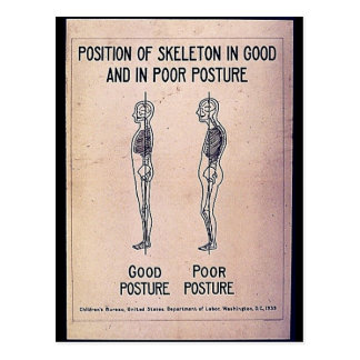 Position Of Skeleton In Good And In Poor Posture Postcard