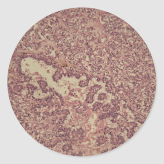 Thyroid gland cells with cancer classic round sticker