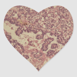 Thyroid gland cells with cancer heart sticker