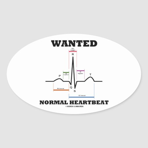 Wanted Normal Hearbeat (ECG/EKG Electrocardiogram) Stickers