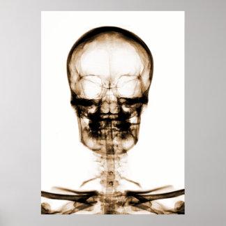 X-RAY VISION SKELETON SKULL - ORANGE PRINT