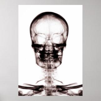 X-RAY VISION SKELETON SKULL - ORIGINAL POSTERS